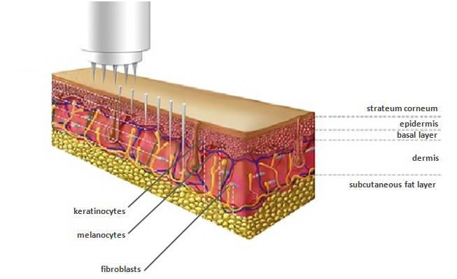 Dermapen, Ανάπλαση Δέρματος 3