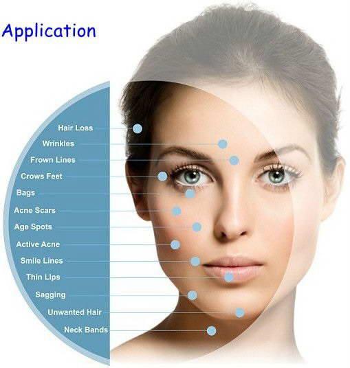 Dermapen, Ανάπλαση Δέρματος 4