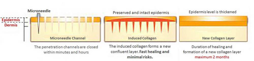 Dermapen, Ανάπλαση Δέρματος 5