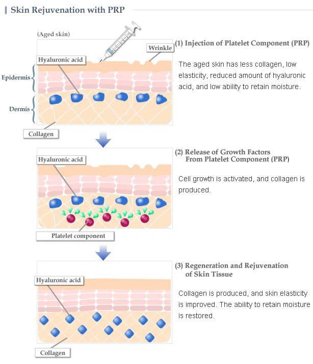 PRP, Αυτόλογη Μεσοθεραπεία 4