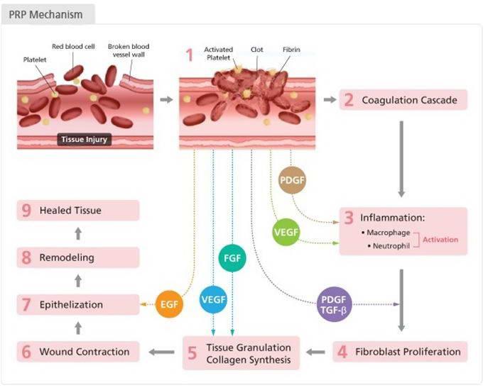 PRP, Αυτόλογη Μεσοθεραπεία 6