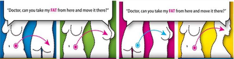 Λιποπρόσθεση (Lipofilling)  1