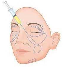Λιποπρόσθεση (Lipofilling)  6
