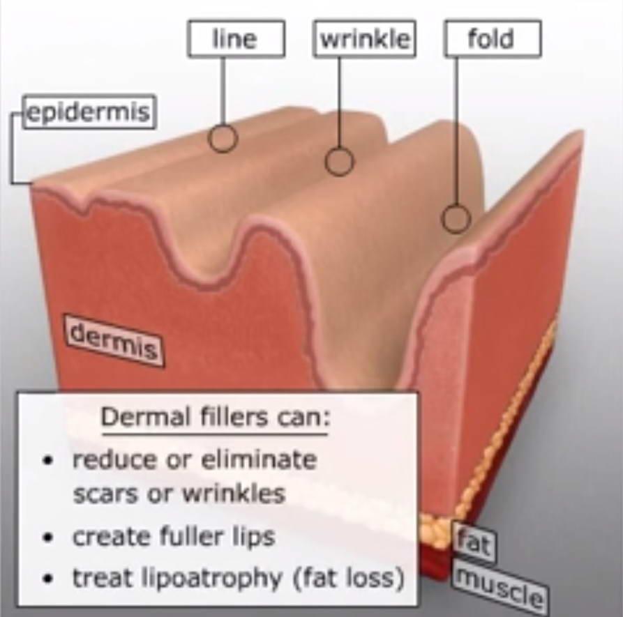 Υαλουρονικό Οξύ 5