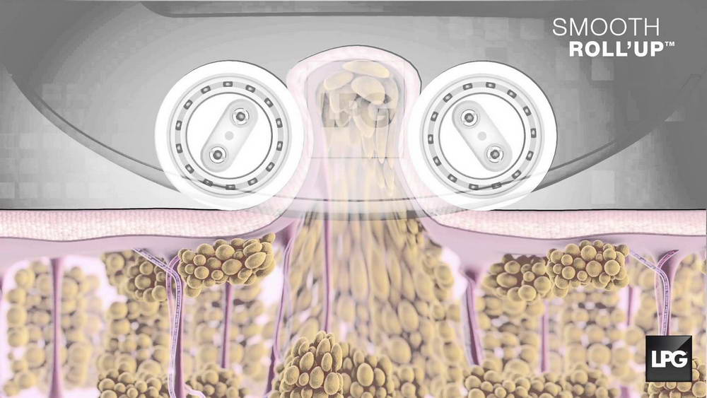 LPG Θεραπεία Κυτταρίτιδας 3