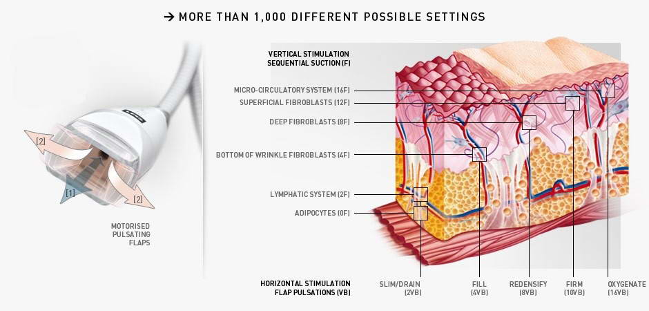 LPG Θεραπεία Κυτταρίτιδας 4