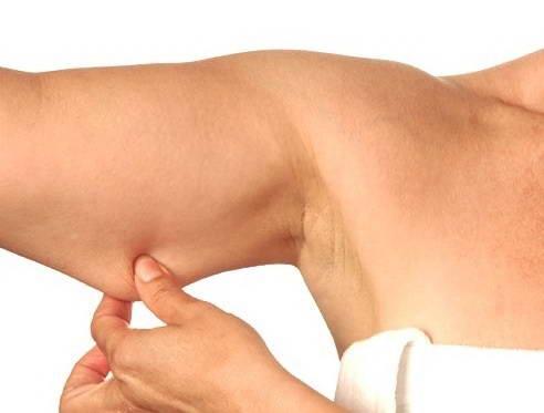 Αποκατάσταση Χαλάρωσης  Δέρματος 1