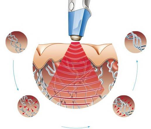 Αποκατάσταση Χαλάρωσης  Δέρματος 11
