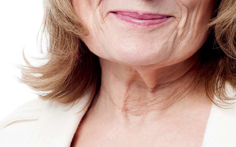 Αποκατάσταση Χαλάρωσης  Δέρματος 3