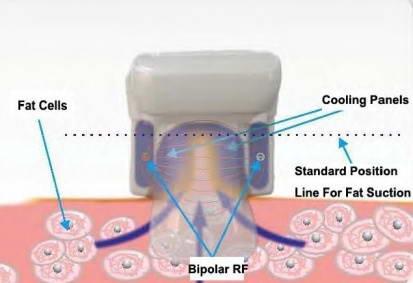 Κρυολιπόλυση 5