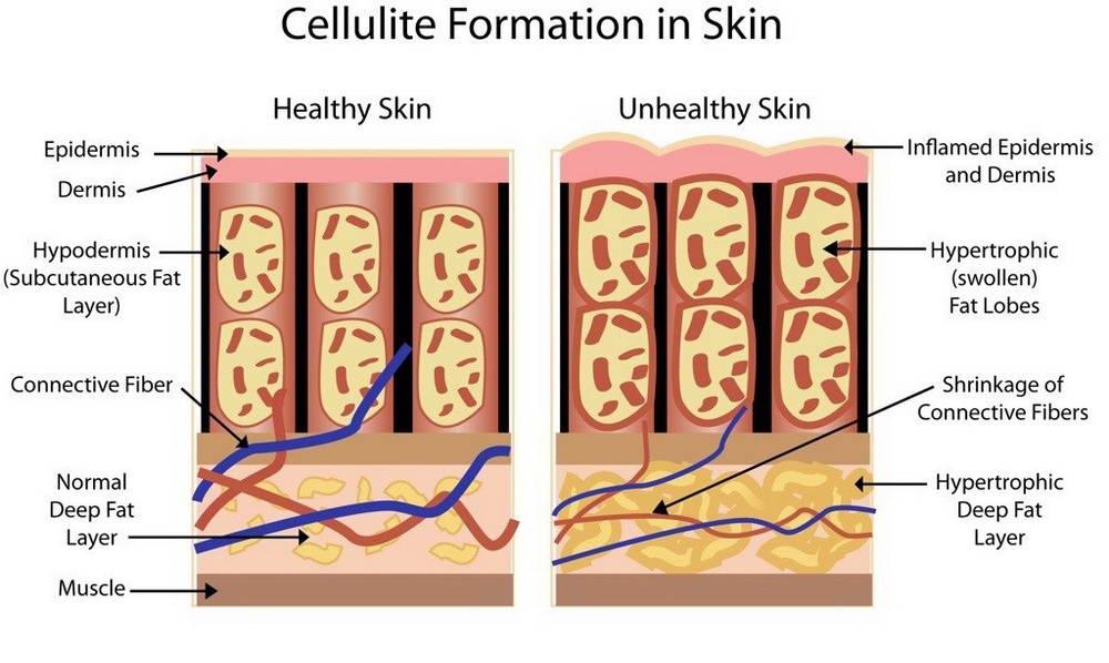 Μεσοθεραπεία Κυτταρίτιδας 4