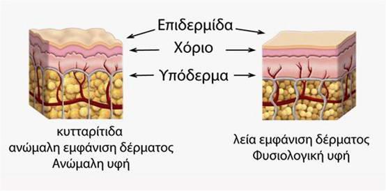 Τί είναι η κυτταρίτιδα; 2