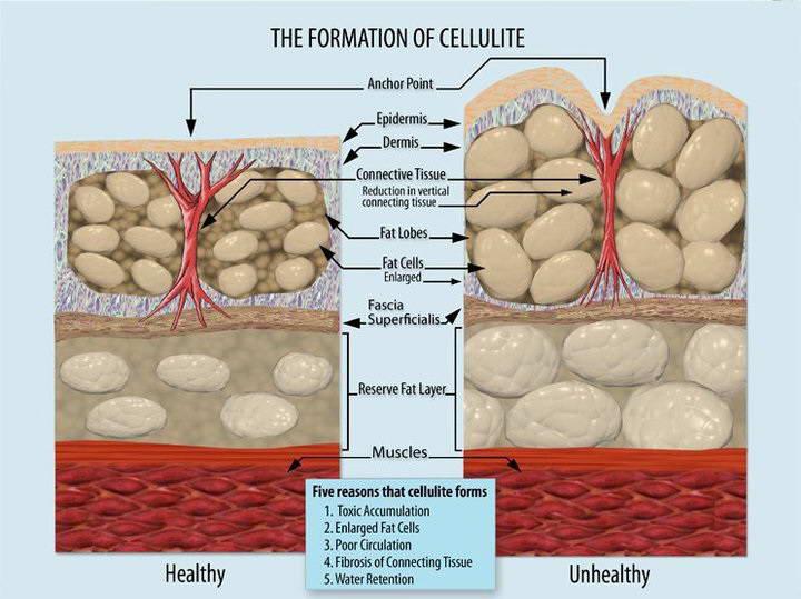 Τί είναι η κυτταρίτιδα; 3
