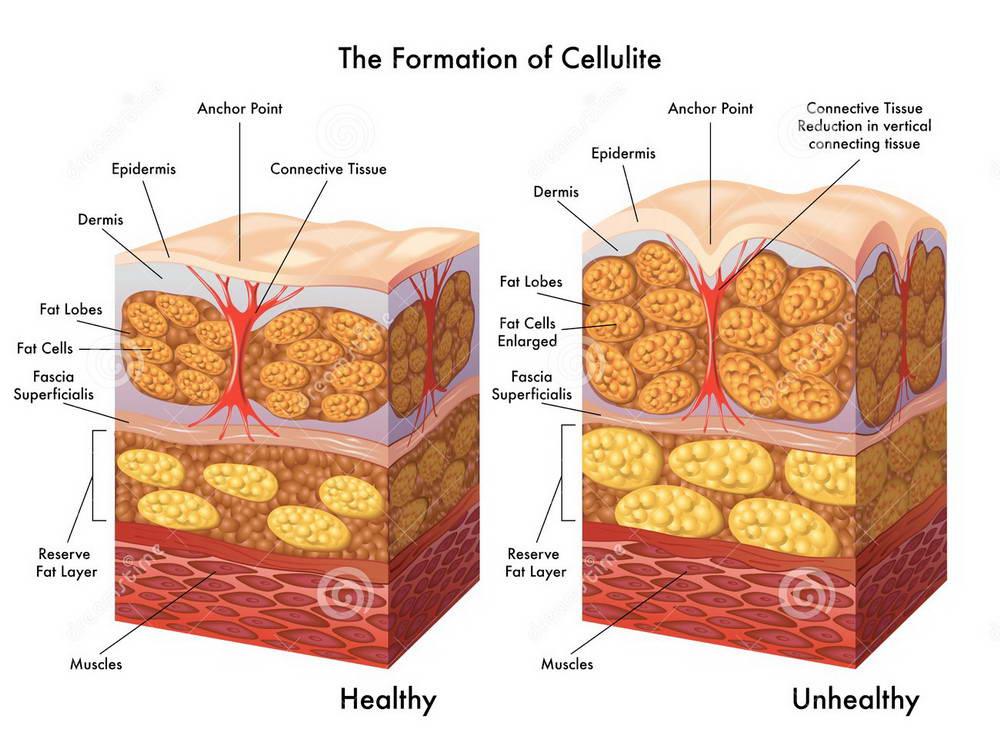Τί είναι η κυτταρίτιδα; 5