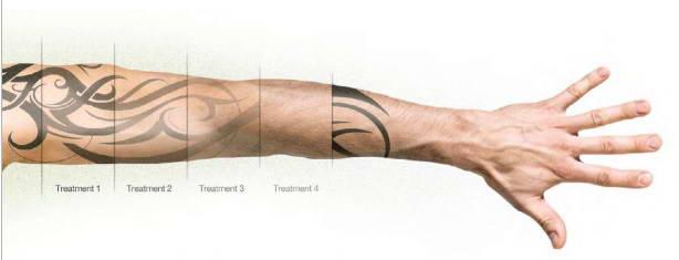 Αφαίρεση Ανεπιθύμητων Tattoo 14