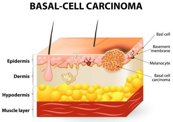 Καρκίνων του Δέρματος  2
