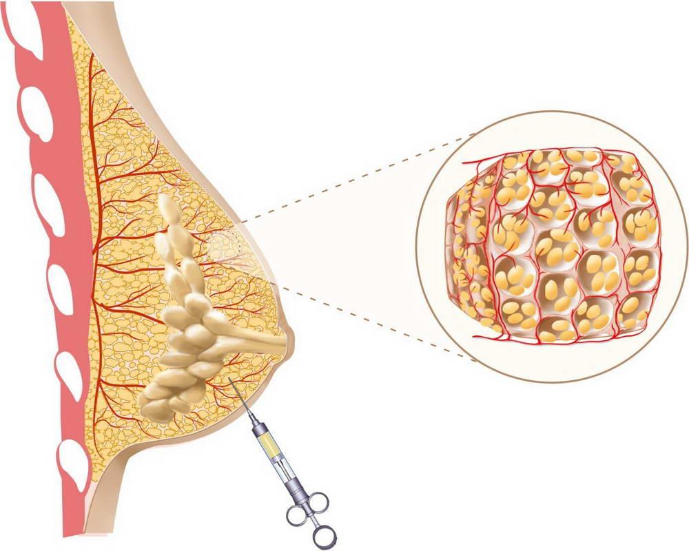 Αυξητική Στήθους με Λιποπρόσθεση (Lipofilling) 3