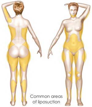 Αυξητική Στήθους με Λιποπρόσθεση (Lipofilling) 4