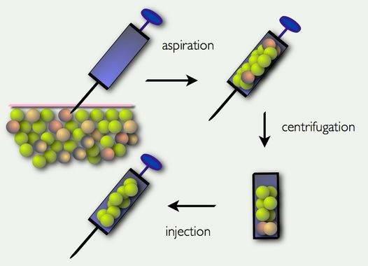 Αυξητική Στήθους με Λιποπρόσθεση (Lipofilling) 5