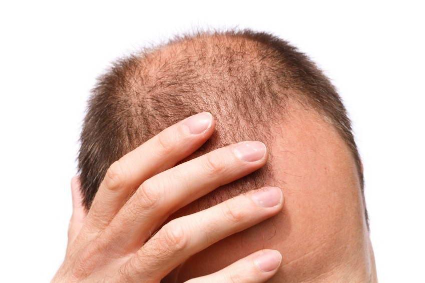 Μεταμόσχευση Μαλλιών 2