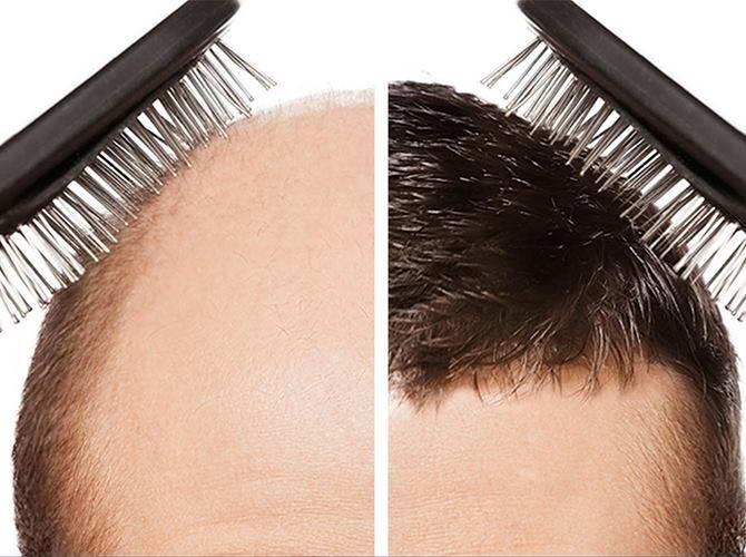 Μεταμόσχευση Μαλλιών 6