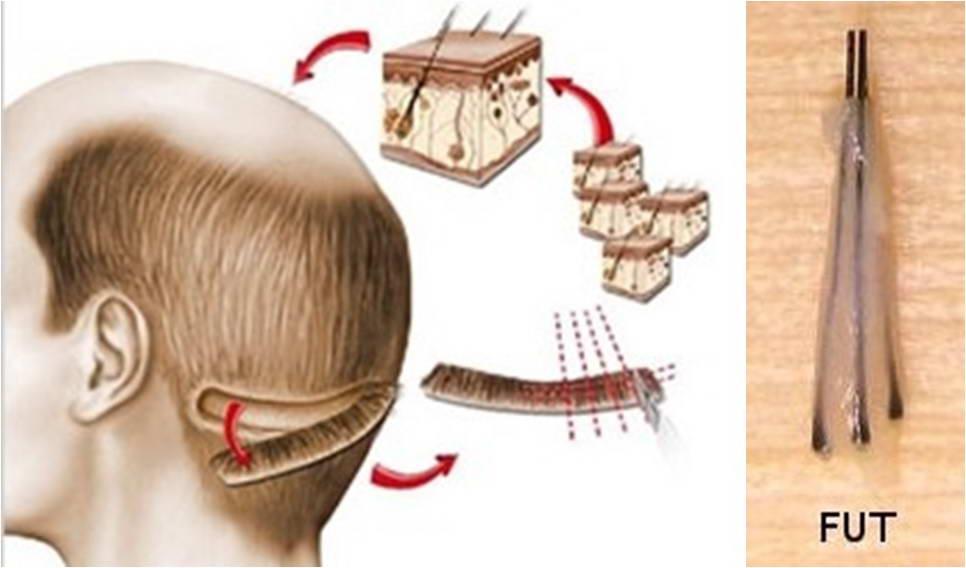 Μεταμόσχευση Μαλλιών 7