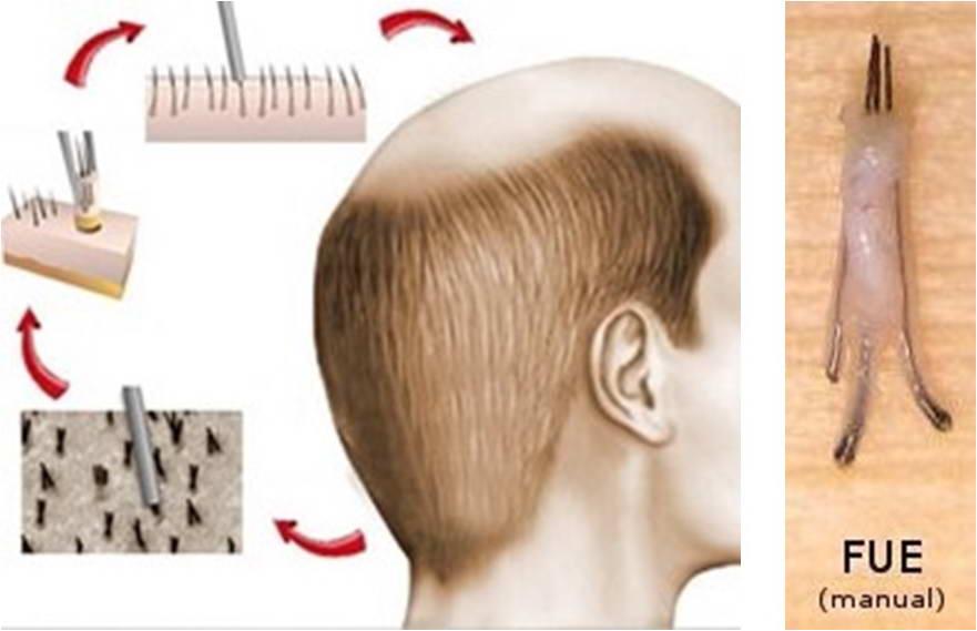 Μεταμόσχευση Μαλλιών 8