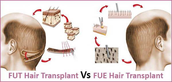 Μεταμόσχευση Μαλλιών 9