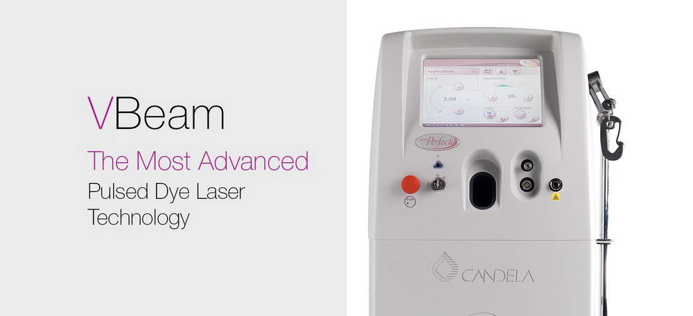 LASER V-Beam 595nm, Perfecta®, Candela 2