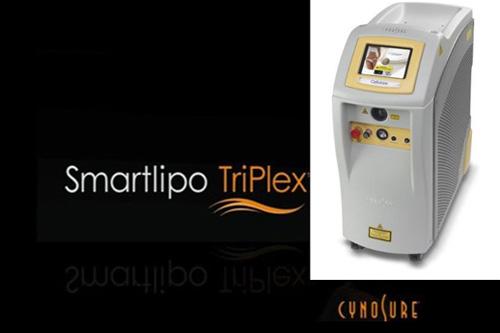 Συσκευή LASER λιπόλυσης, SmartLipo TriPlex™, Cynosure®