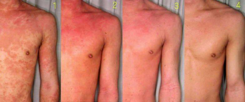 Ατοπική Δερματίτιδα – Έκζεμα 10