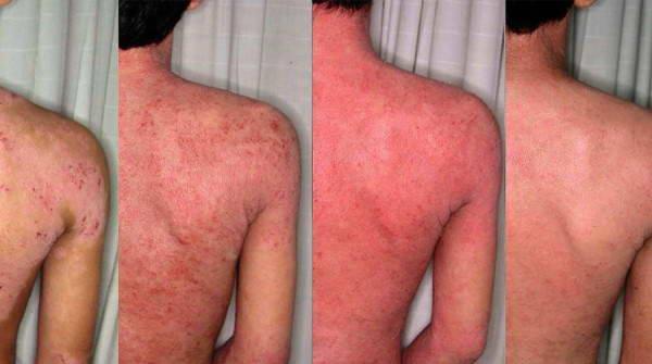 Ατοπική Δερματίτιδα – Έκζεμα 11