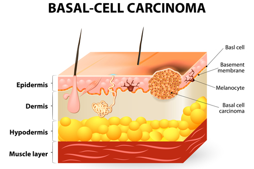 BCC (Βασικοκυτταρικό Καρκίνωμα)