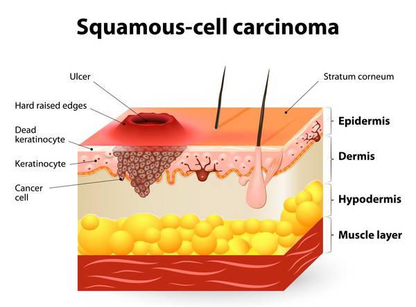 SCC (Ακανθοκυτταρικό Καρκίνωμα) 1