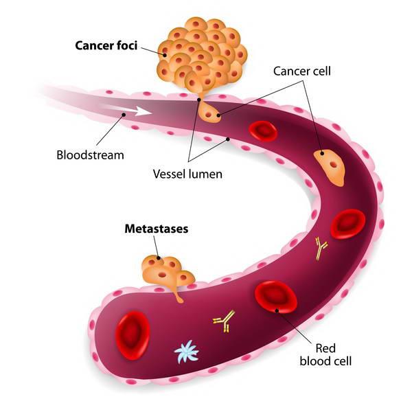 SCC (Ακανθοκυτταρικό Καρκίνωμα) 10