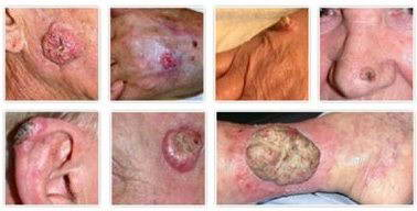 SCC (Ακανθοκυτταρικό Καρκίνωμα) 2