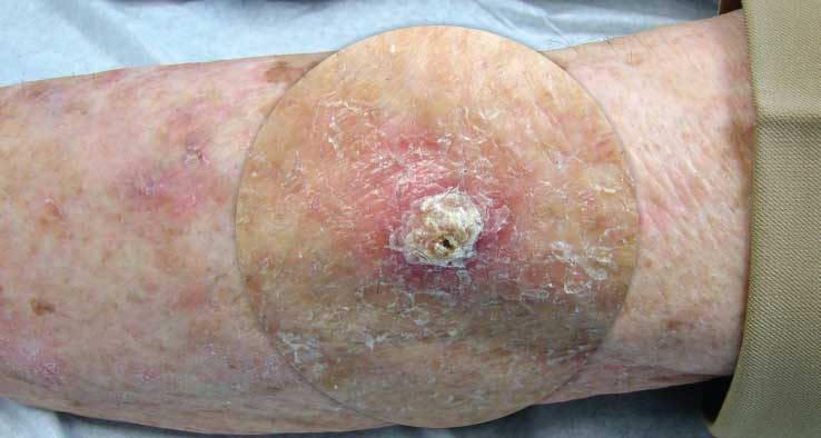 SCC (Ακανθοκυτταρικό Καρκίνωμα) 6