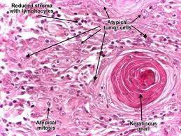 SCC (Ακανθοκυτταρικό Καρκίνωμα) 8