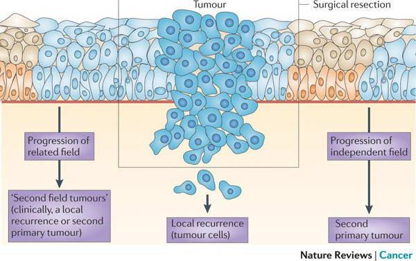 SCC (Ακανθοκυτταρικό Καρκίνωμα) 9