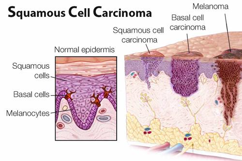SCC (Ακανθοκυτταρικό Καρκίνωμα)
